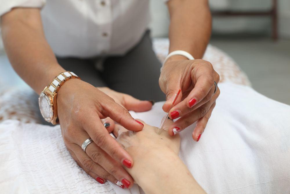 Akupunktur – alternativet som vunnit mark